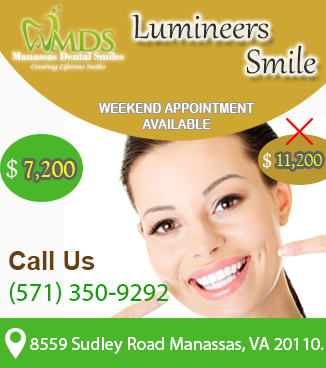 Lumineers Smile